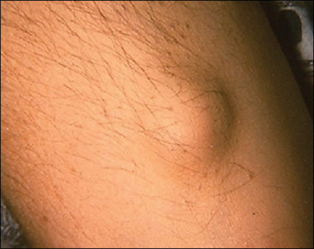 Subcutaneous Nodules: Causes, Signs, Symptoms and Treatment